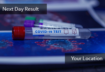 PCR Next Day Result (Door Service)