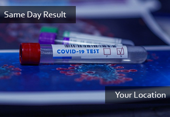 PCR Same Day Result (Door Service)