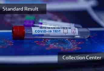 PCR Standard Result (Collection Center)