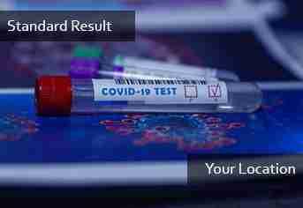 PCR Standard Result (Door Service)